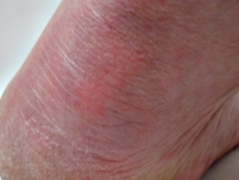 [picture: Close-up of a bare heel]