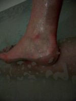 [picture: Wet ankle]