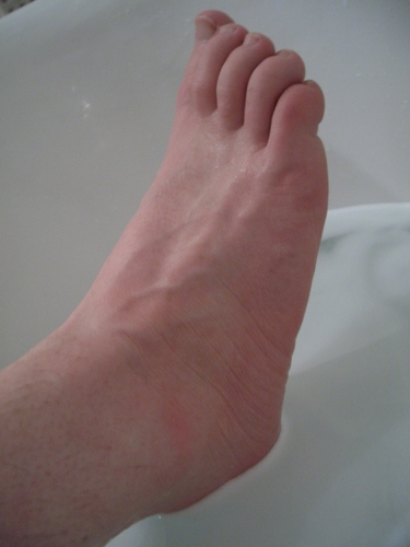 [Picture: A wet bare foot]