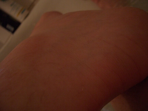 [Picture: Ankle close-up]